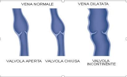 La Trombosi venosa